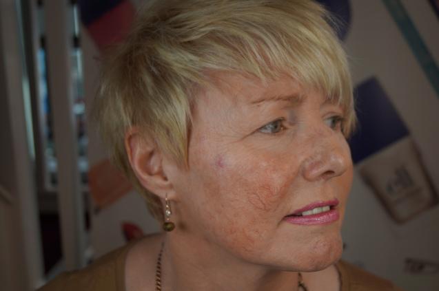 Roscea skin